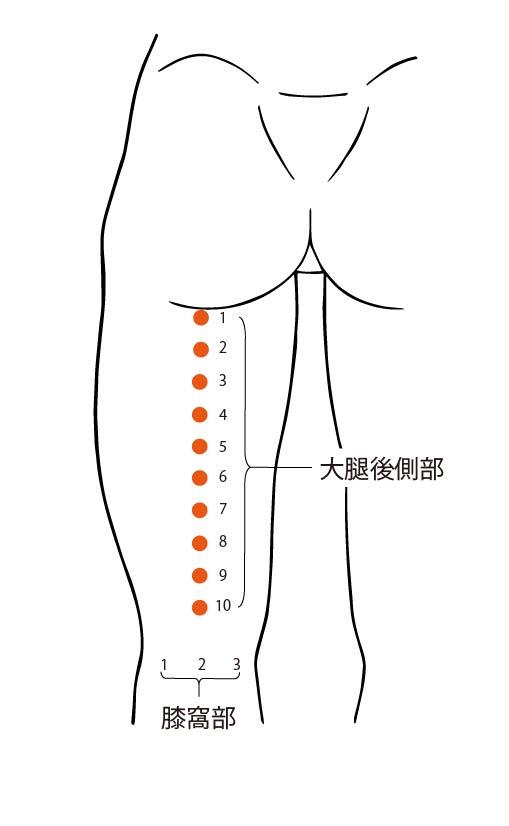 図1. 大腿後面部10点