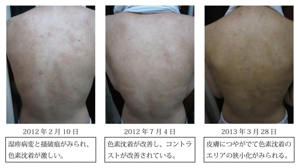 図4 症例1における皮膚症状の変化