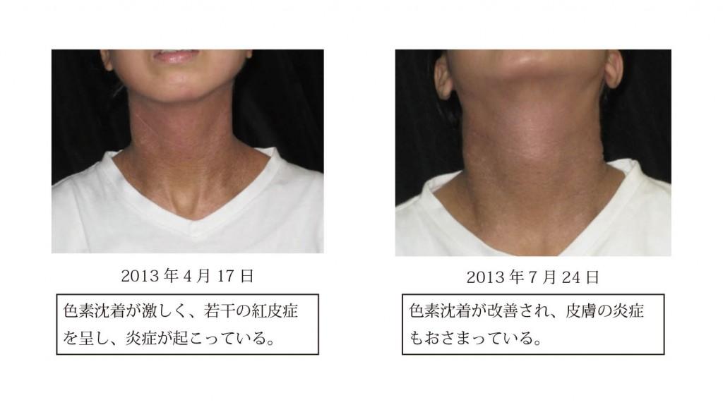 図5 症例2における皮膚症状の変化