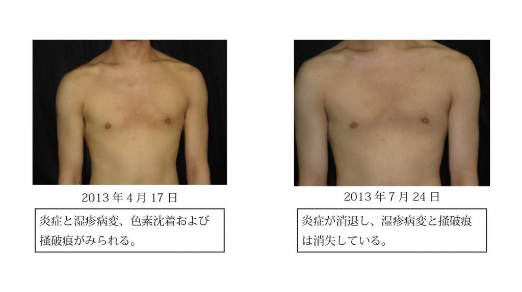 図6 症例3における皮膚症状の変化