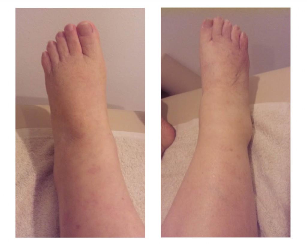 図3.2011年12月12日(第16回施術後) 右足関節、足背部、足趾部に 浮腫の軽減がみられ、皮膚表面にすべすべとした感じが出てきた。