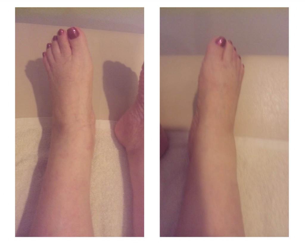 図4.2012年6月29日(第38回施術後) 左右の下腿、足関節、足背、足趾部ともに 浮腫の軽減がみられ、足趾部のしわも改善。見た目の浮腫が気にならなくなった。