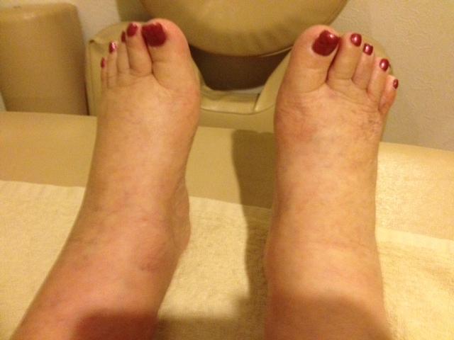 図5.施術前:下腿、足関節、足背、足趾部に浮腫が強くみられる。