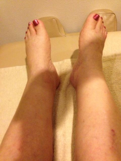 図7.施術後:下腿、足関節、足背、足趾部ともに浮腫の改善がみられた。