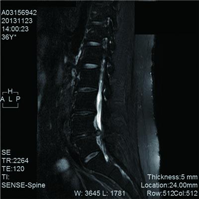 図1.本症例におけるMRI画像所見
