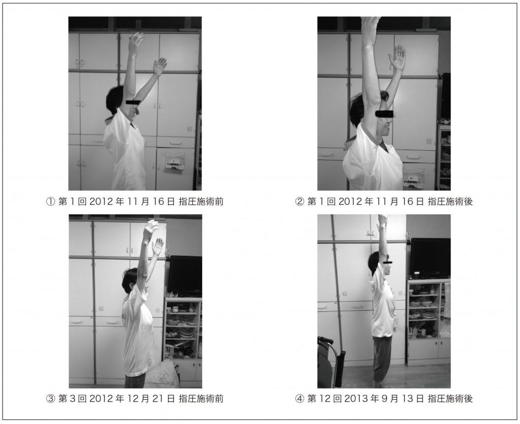 図1. 左右上肢前方挙上の肩関節可動域