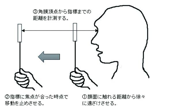 図2. 角膜頂点から指標までの距離を計測