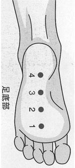 図1.足底部4点