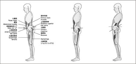 図2.腹直筋、腸腰筋の過緊張が骨盤の傾斜および腰椎の弯曲に与える影響
