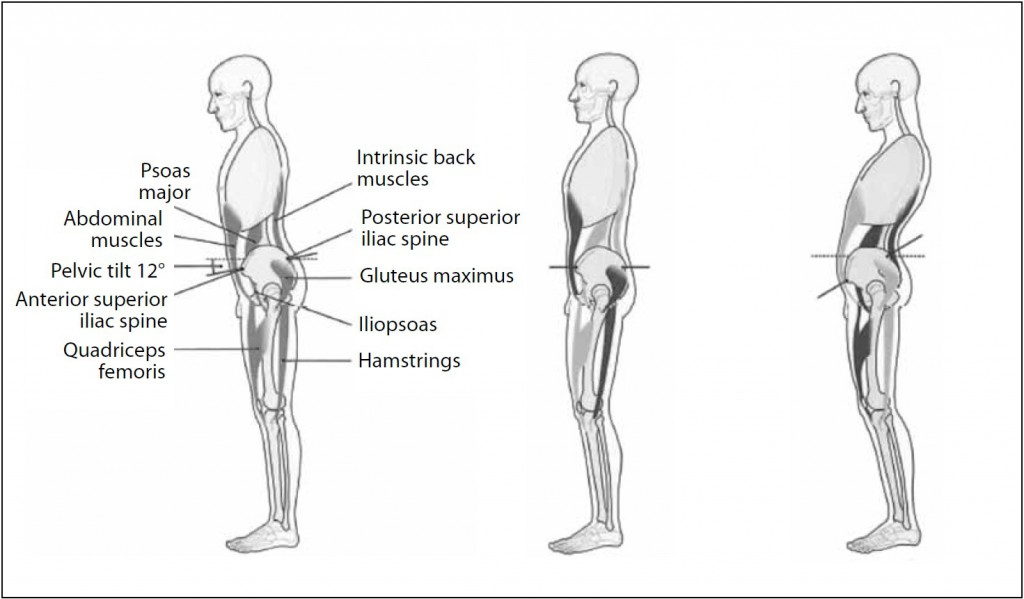 Fig. 2. Effect of rectus abdominis and iliopsoas hypertonus on pelvic angle and lumbar spinal curvature