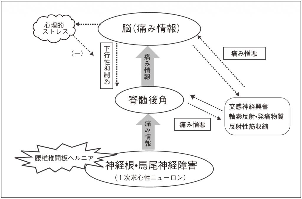 図4:痛みの慢性化メカニズム