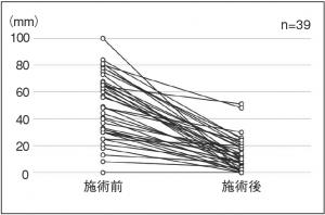 図3.全身の疲労度合いー施術前後のVASの変化