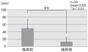 図4.全身の疲労度合いー施術前後のVASの平均