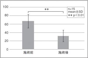 図3. 疲労度の施術前後VASの平均(投てき種目)