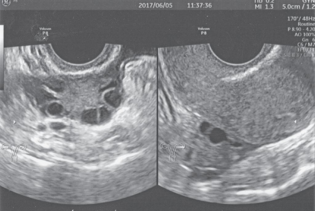図1.6月5日の超音波検診結果