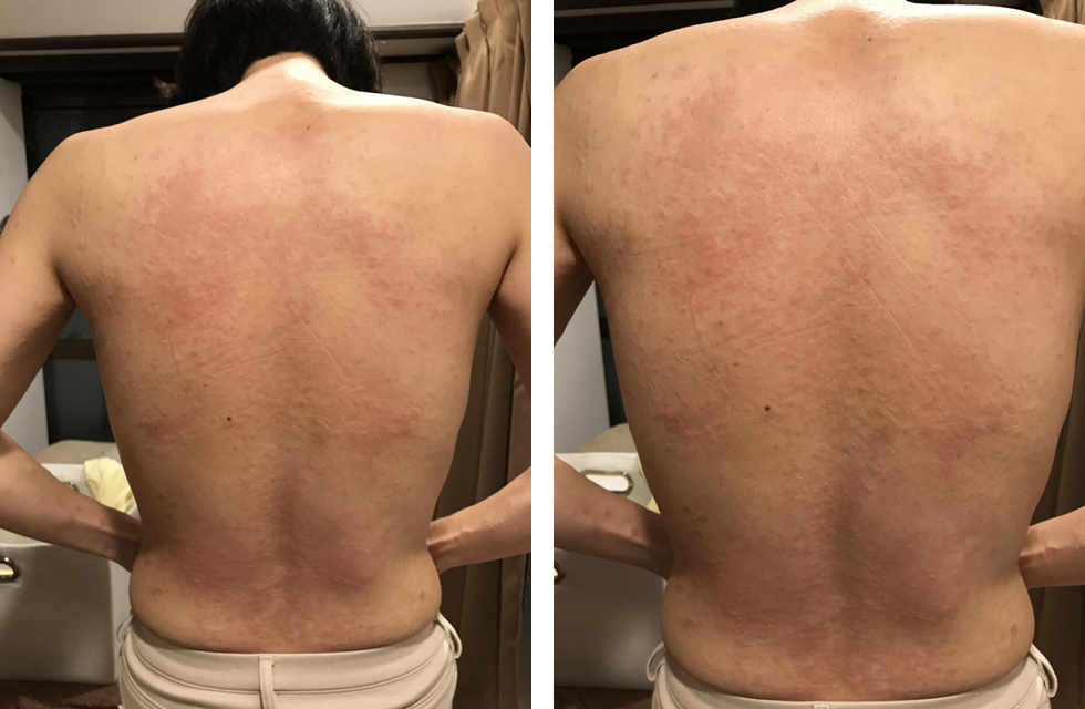図1.第1回(2017年11月11日)治療後の所見