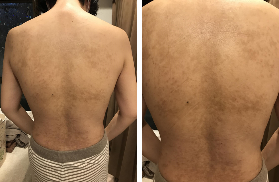 図4.第4回(2017年12月22日)治療後の所見
