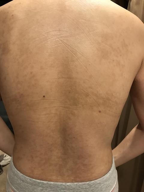 図5.第5回(2018年1月11日)治療後の所見